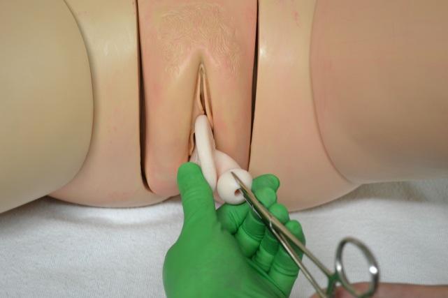 Pessaries For Pelvic Organ Prolapse Topics In Obstetrics